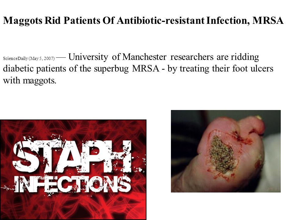 Maggots Rid Patients Of Antibiotic-resistant Infection, MRSA