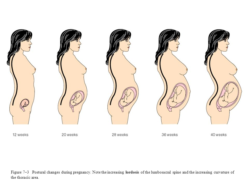 Figure 7–3 Postural changes during pregnancy