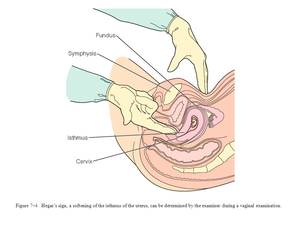 Figure 7–4 Hegar's sign, a softening of the isthmus of the uterus, can be determined by the examiner during a vaginal examination.
