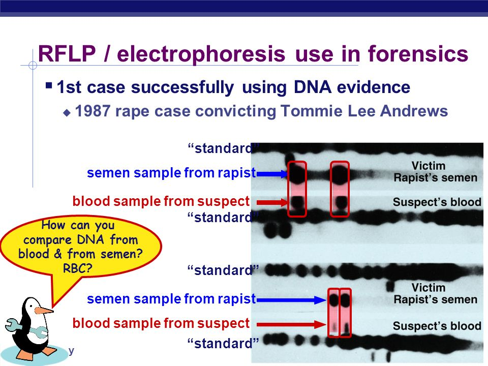 RFLP / electrophoresis use in forensics