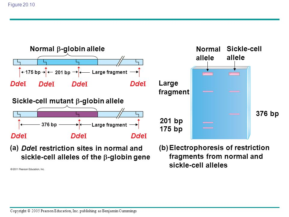Normal -globin allele Normal allele Sickle-cell allele