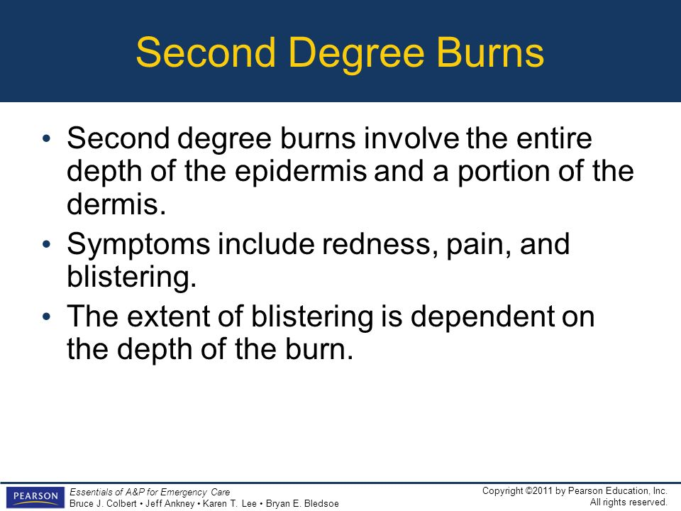 Second Degree Burns Second degree burns involve the entire depth of the epidermis and a portion of the dermis.
