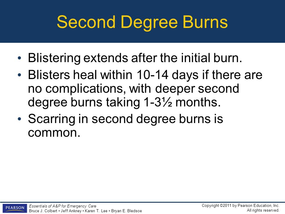Second Degree Burns Blistering extends after the initial burn.