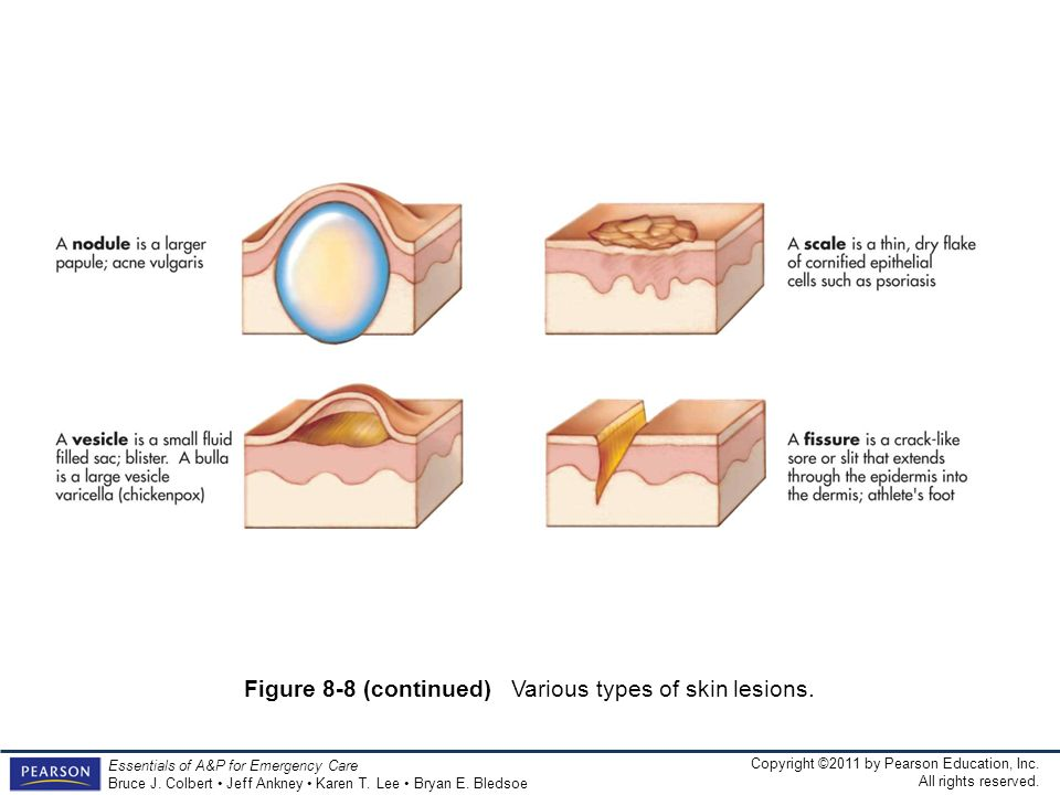 Figure 8-8 (continued) Various types of skin lesions.