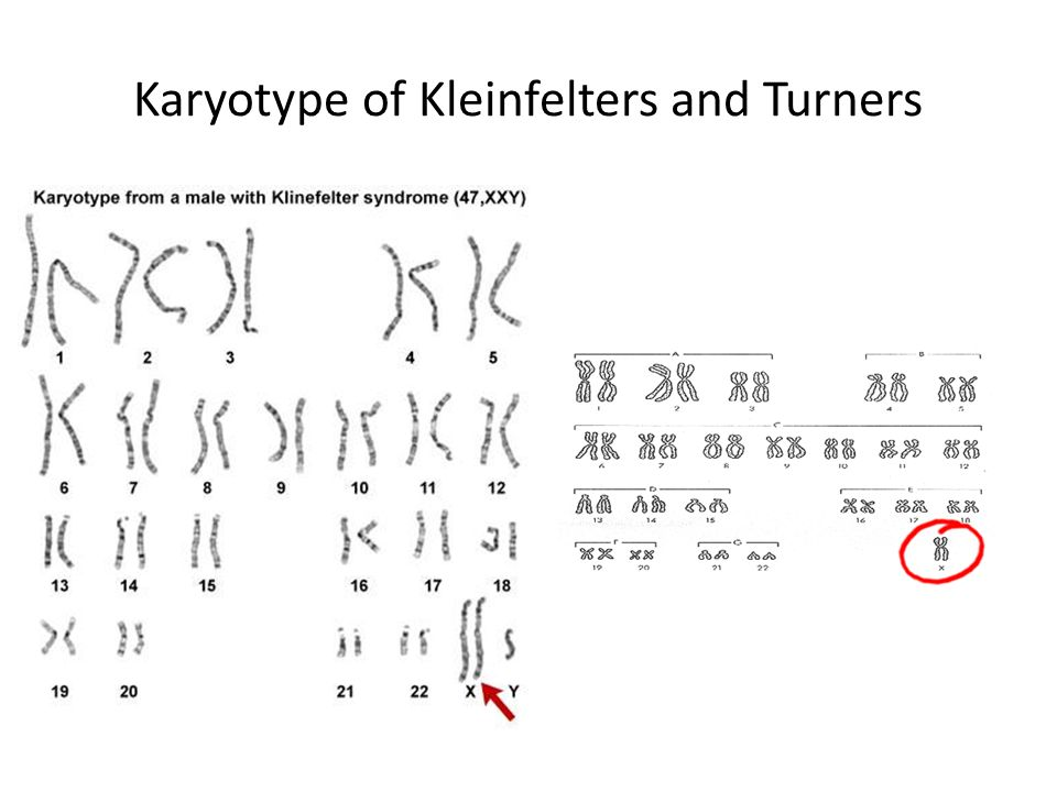 Karyotype of Kleinfelters and Turners
