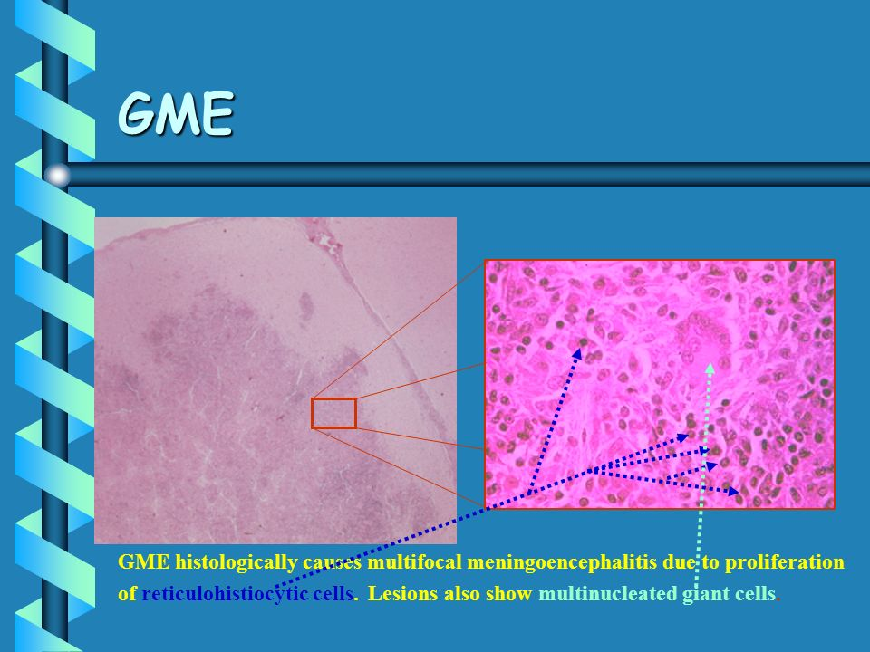 GME GME histologically causes multifocal meningoencephalitis due to proliferation.