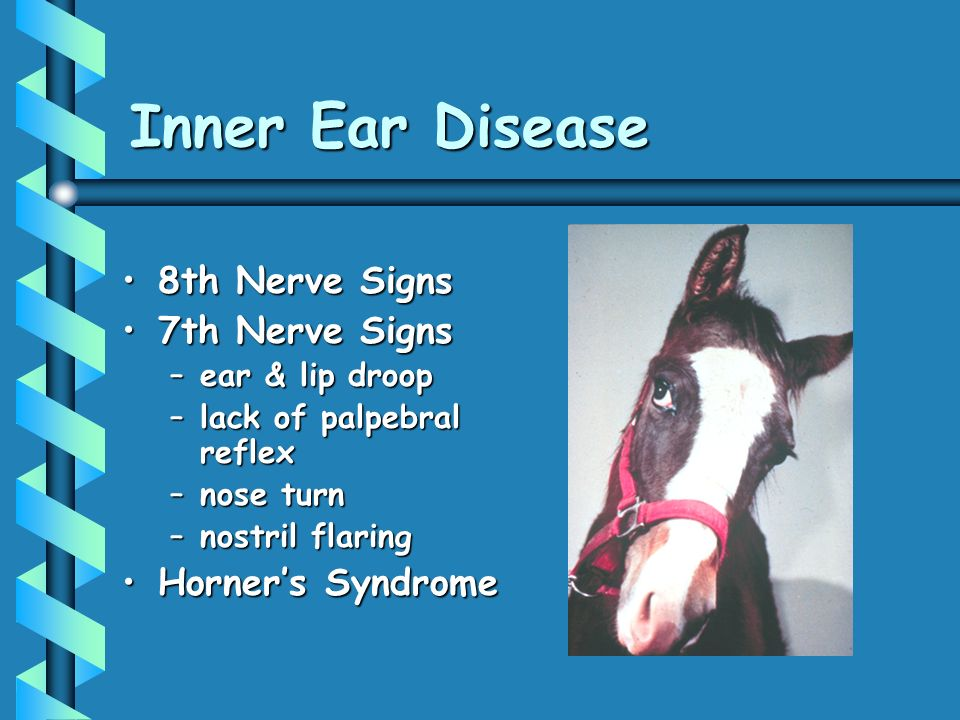 Inner Ear Disease 8th Nerve Signs 7th Nerve Signs Horner's Syndrome