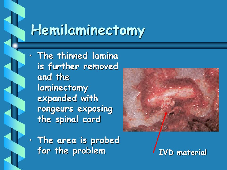 Hemilaminectomy The thinned lamina is further removed and the laminectomy expanded with rongeurs exposing the spinal cord.