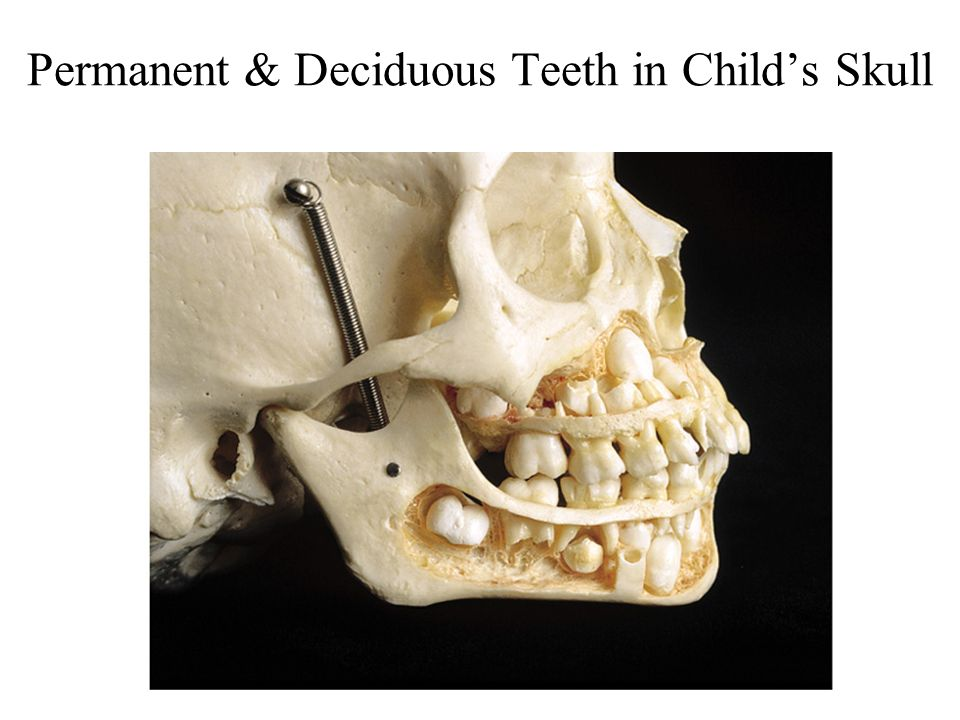 Permanent & Deciduous Teeth in Child's Skull