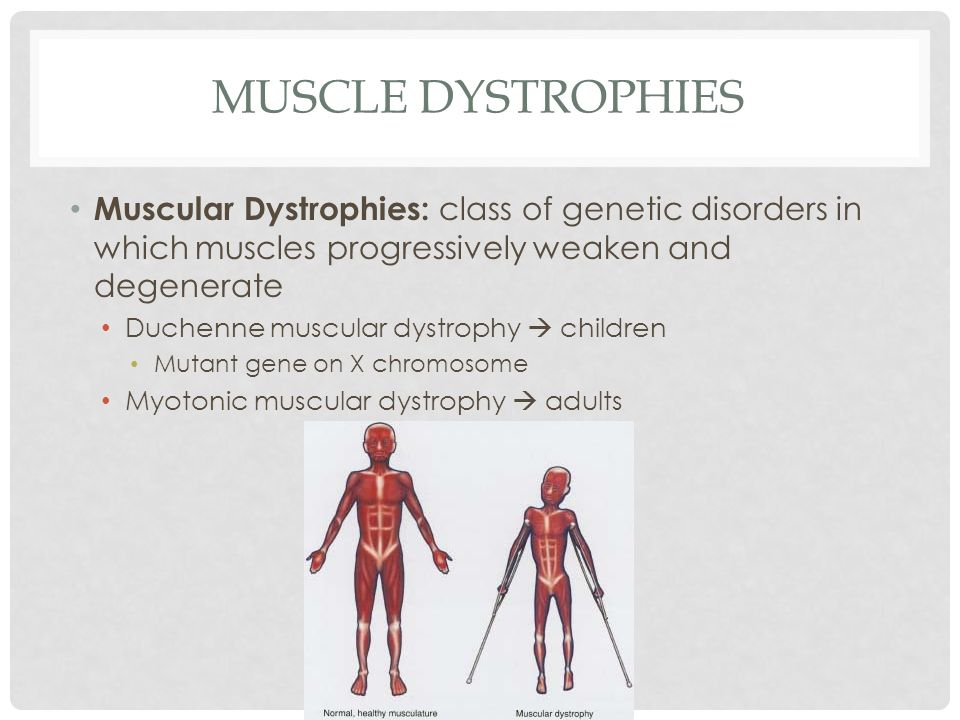 Muscle Dystrophies Muscular Dystrophies: class of genetic disorders in which muscles progressively weaken and degenerate.