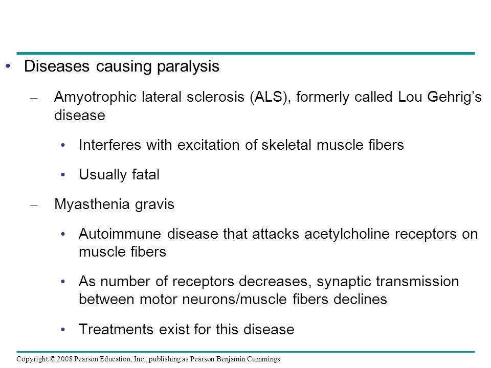 Diseases causing paralysis