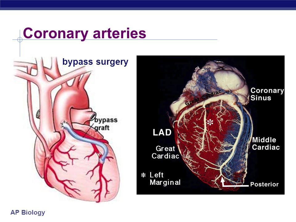 Coronary arteries bypass surgery