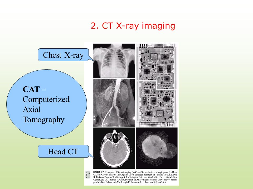 2. CT X-ray imaging Chest X-ray CAT – Computerized Axial Tomography Head CT