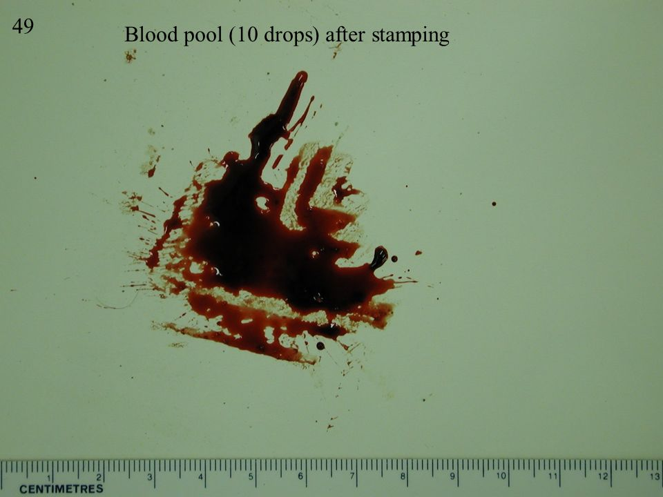 49 Blood pool (10 drops) after stamping Stamp 2
