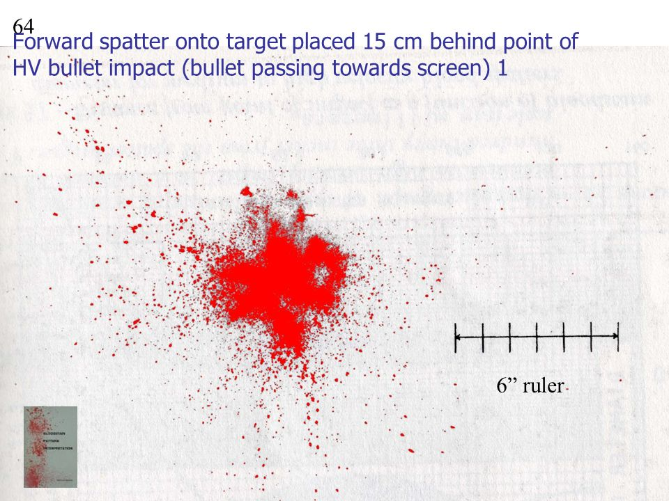 Forward spatter onto target placed 15 cm behind point of HV bullet impact (bullet passing towards screen) 1