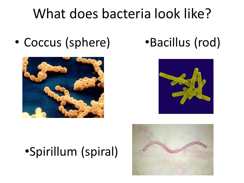 What does bacteria look like