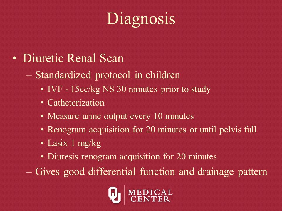 Diagnosis Diuretic Renal Scan Standardized protocol in children