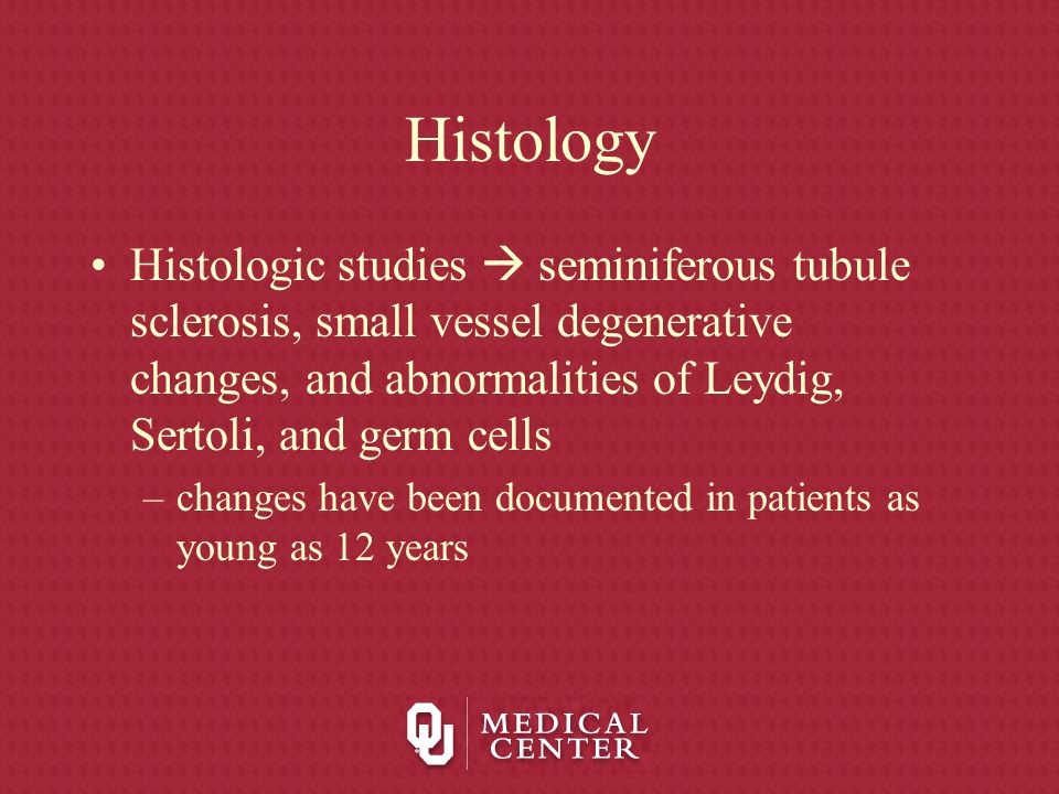 Histology Histologic studies  seminiferous tubule sclerosis, small vessel degenerative changes, and abnormalities of Leydig, Sertoli, and germ cells.