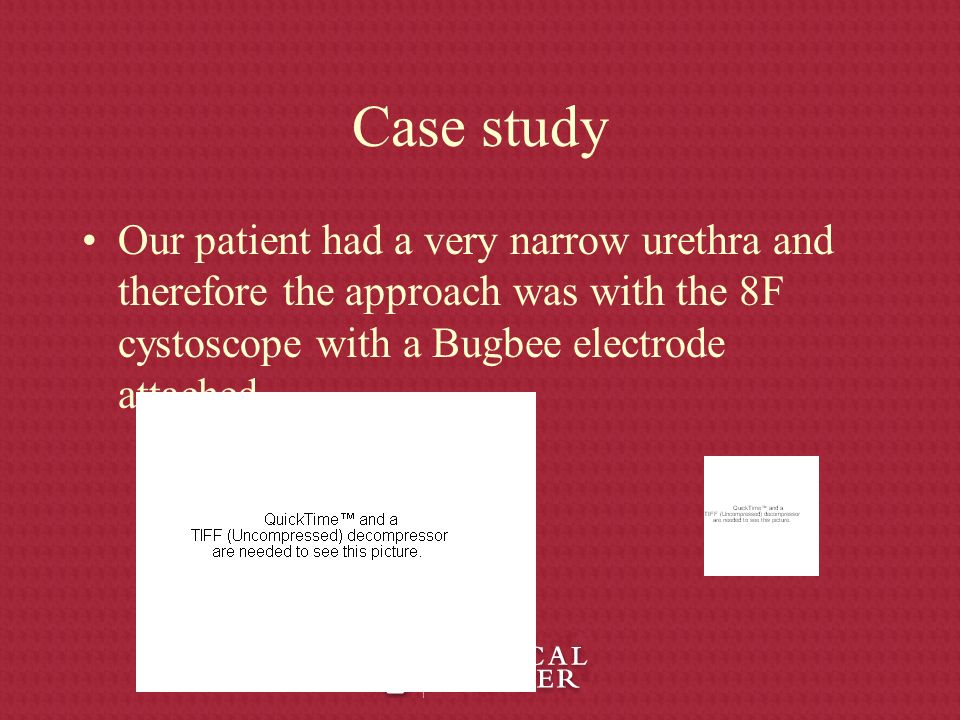 Case study Our patient had a very narrow urethra and therefore the approach was with the 8F cystoscope with a Bugbee electrode attached.