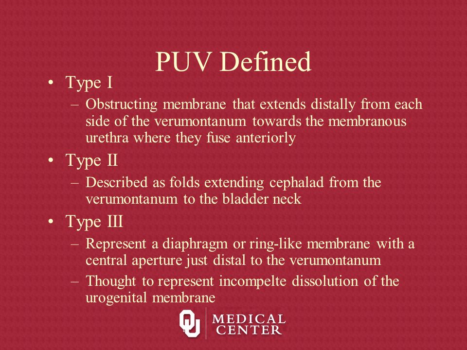 PUV Defined Type I Type II Type III