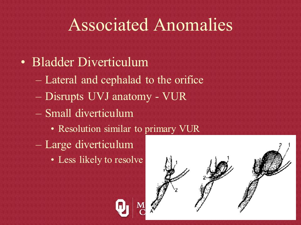 Associated Anomalies Bladder Diverticulum