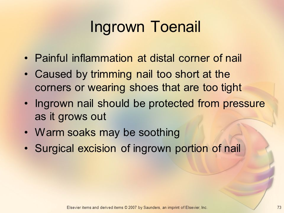 Ingrown Toenail Painful inflammation at distal corner of nail