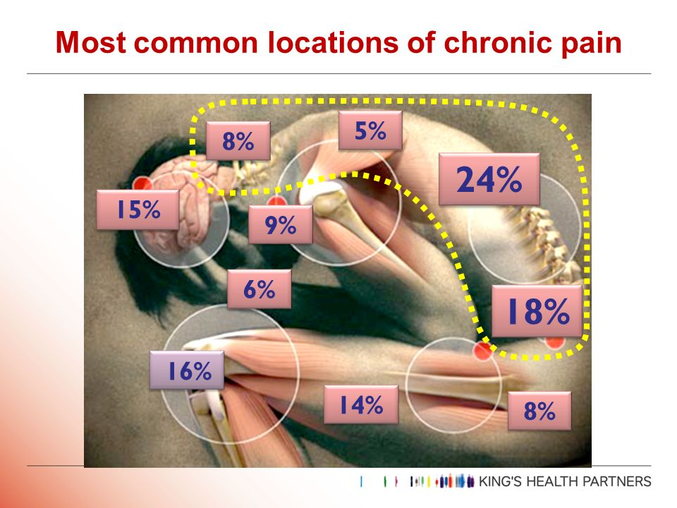 Most common locations of chronic pain