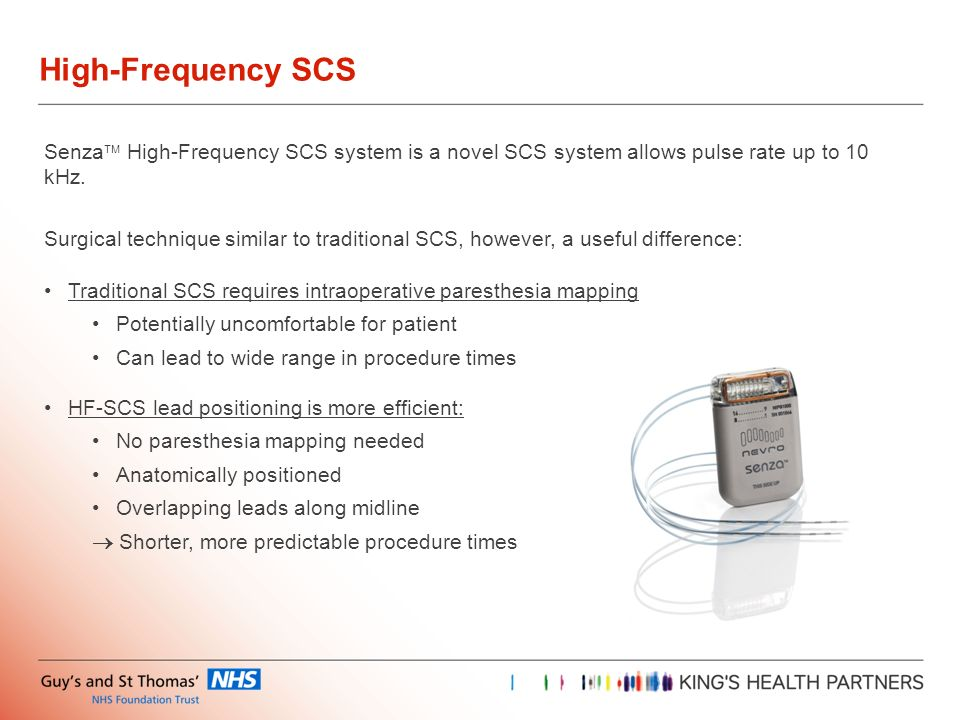 High-Frequency SCS Senza High-Frequency SCS system is a novel SCS system allows pulse rate up to 10 kHz.