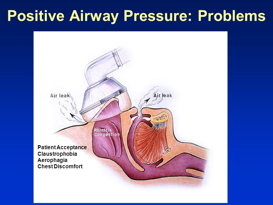 Positive Airway Pressure: Problems
