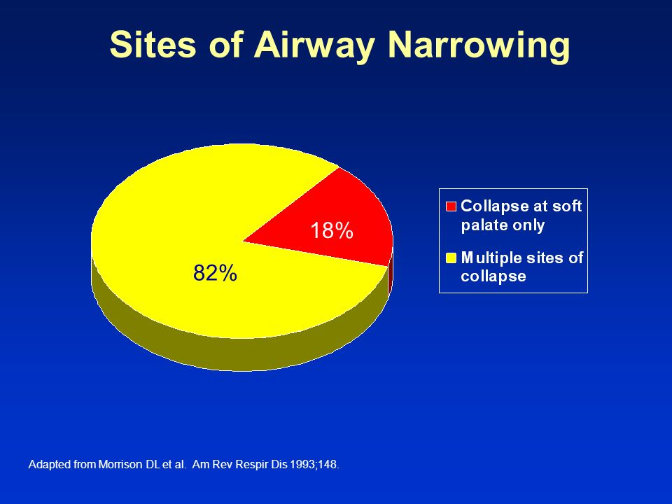Sites of Airway Narrowing