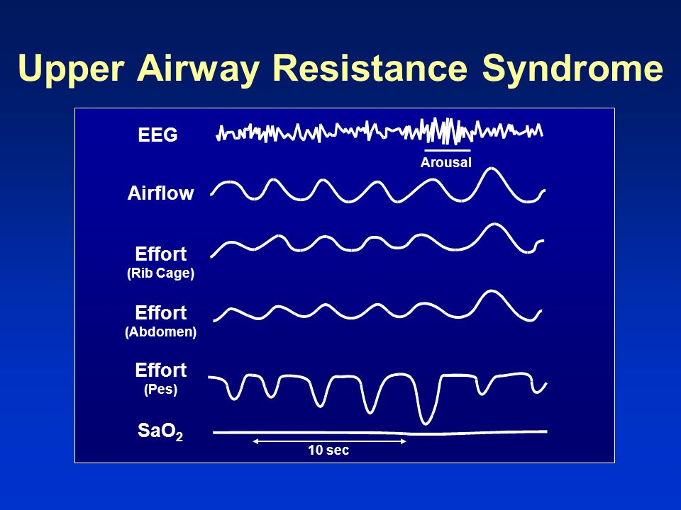 Upper Airway Resistance Syndrome