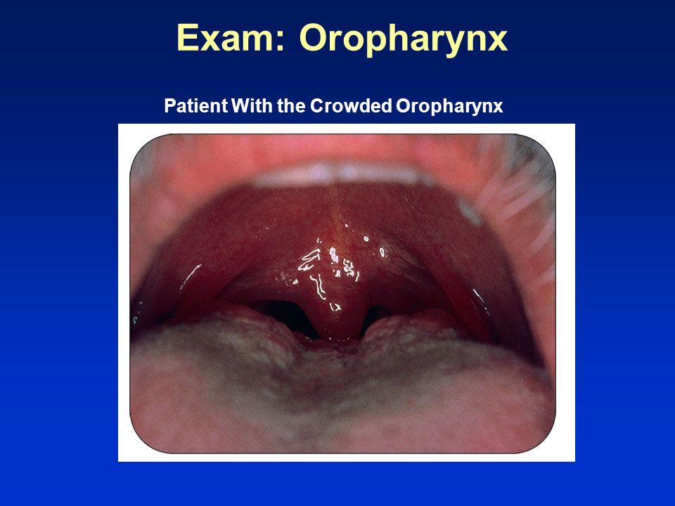 Patient With the Crowded Oropharynx