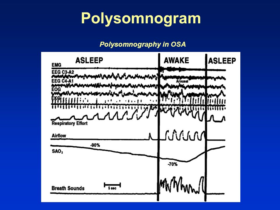 Polysomnography in OSA