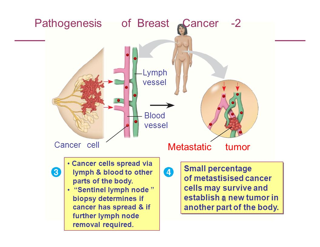 Pathogenesis of Breast Cancer -2