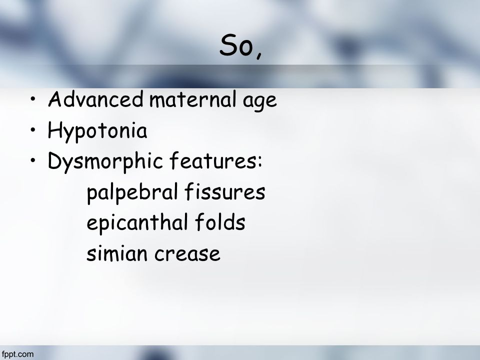 So, Advanced maternal age Hypotonia Dysmorphic features:
