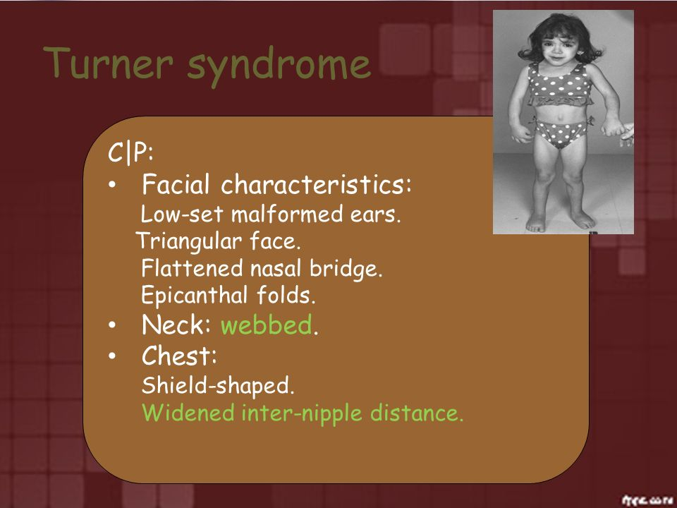 Turner syndrome C|P: Facial characteristics: Neck: webbed. Chest: