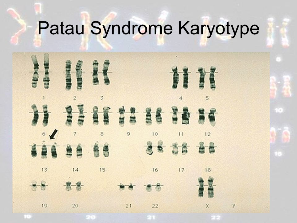 Patau Syndrome Karyotype