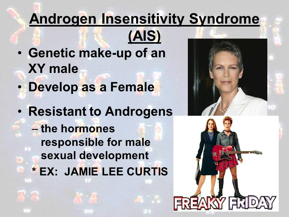 Androgen Insensitivity Syndrome (AIS)