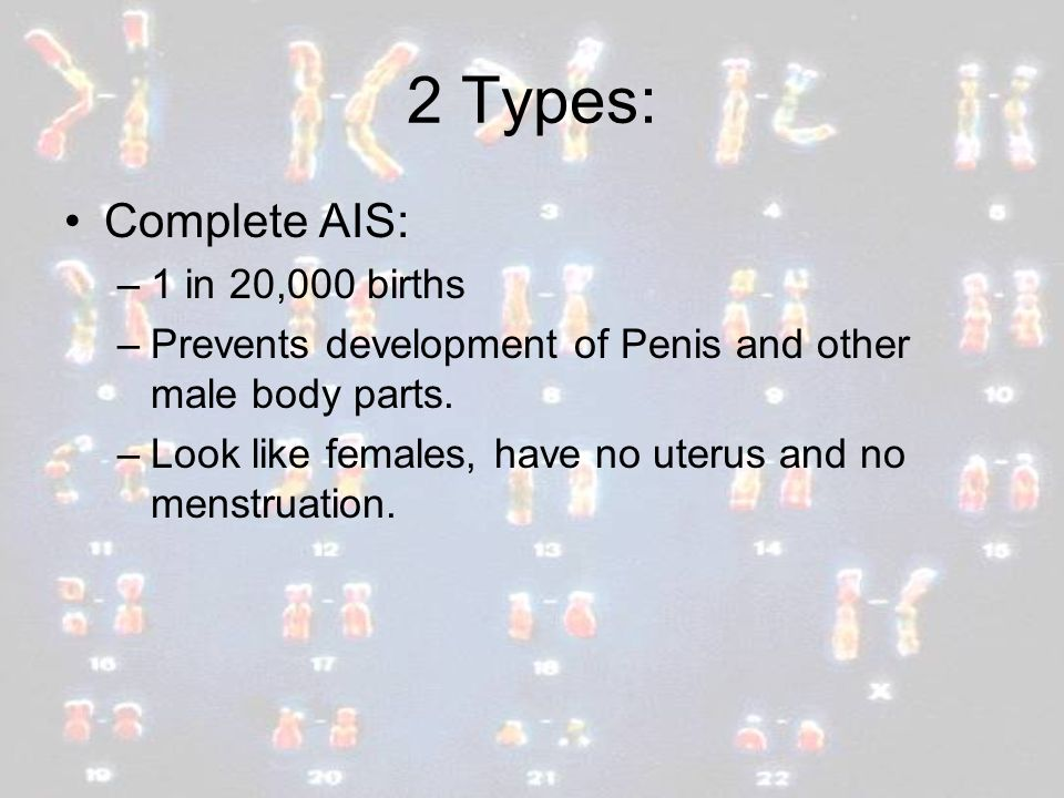 2 Types: Complete AIS: 1 in 20,000 births