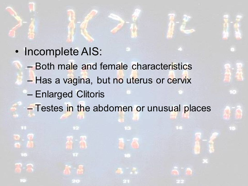 Incomplete AIS: Both male and female characteristics