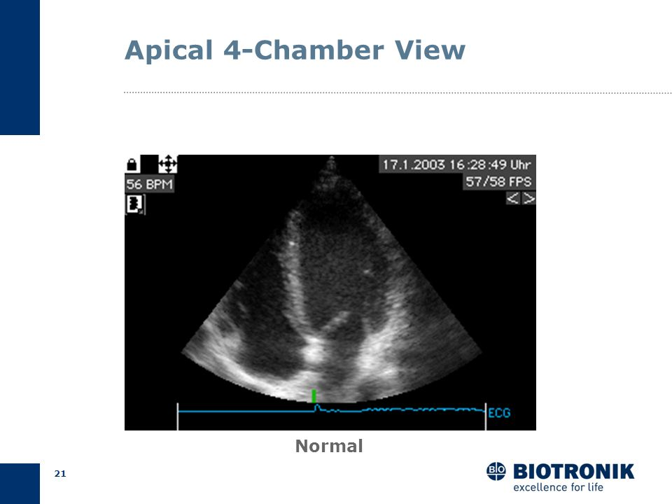 Apical 4-Chamber View Normal