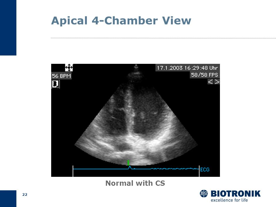 Apical 4-Chamber View Normal with CS