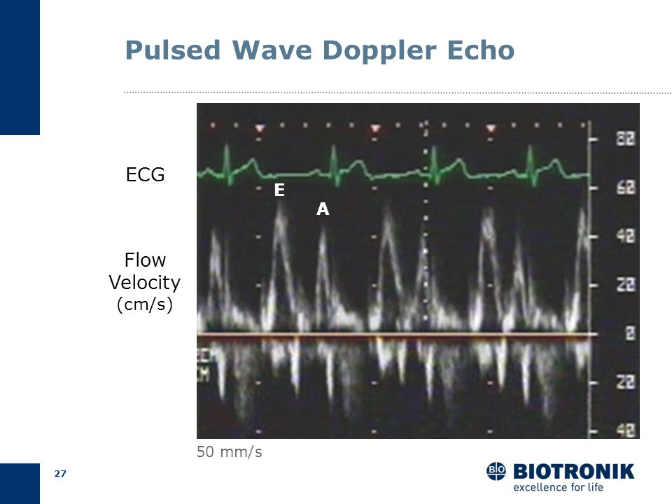 Pulsed Wave Doppler Echo