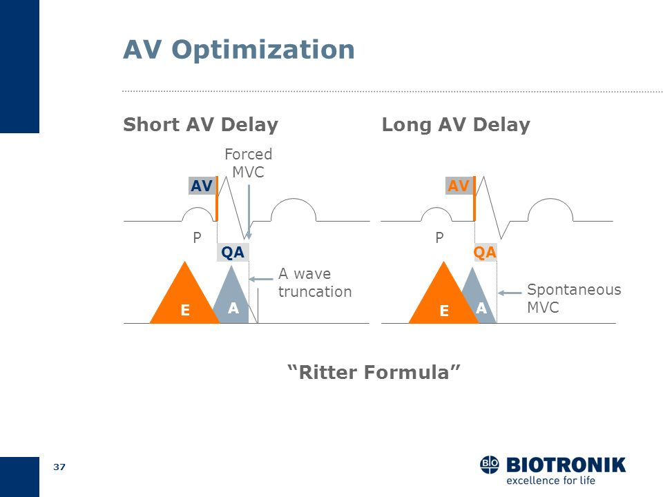 AV Optimization Short AV Delay Long AV Delay Ritter Formula Forced
