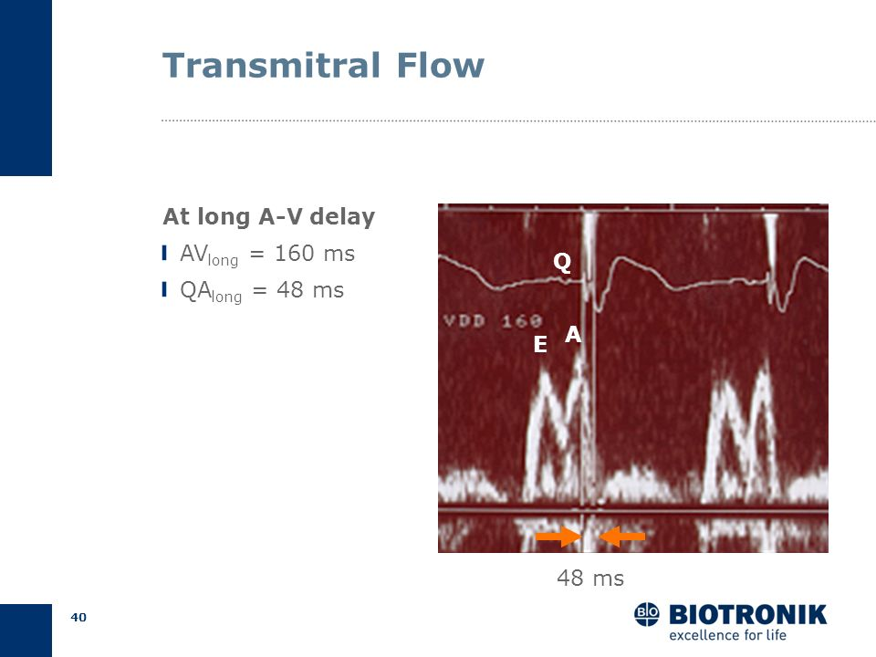 Transmitral Flow At long A-V delay AVlong = 160 ms QAlong = 48 ms Q A