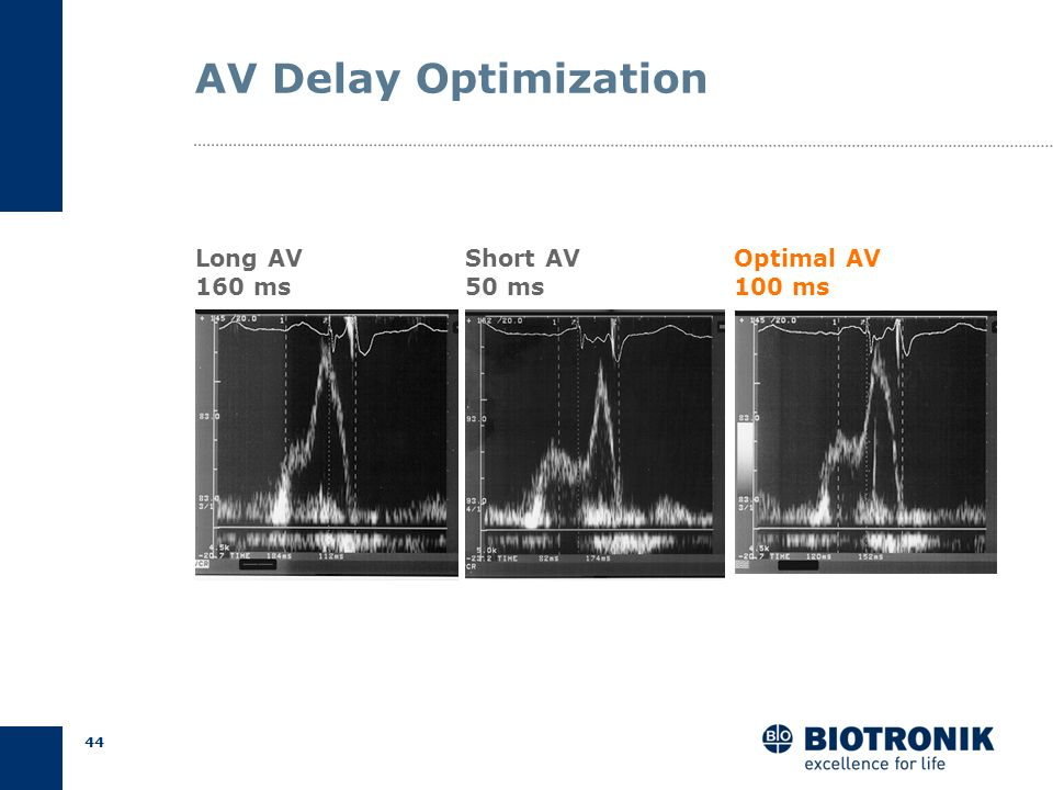 AV Delay Optimization Long AV 160 ms Short AV 50 ms Optimal AV 100 ms