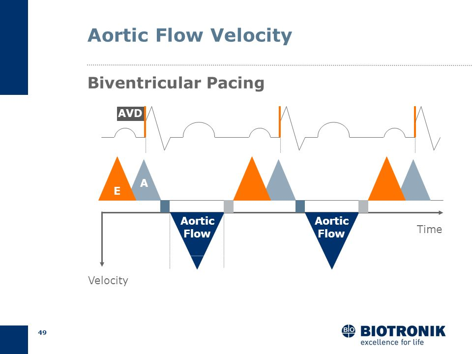 Aortic Flow Velocity Biventricular Pacing AVD A E Aortic Flow Aortic