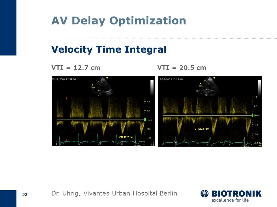 AV Delay Optimization Velocity Time Integral VTI = 12.7 cm