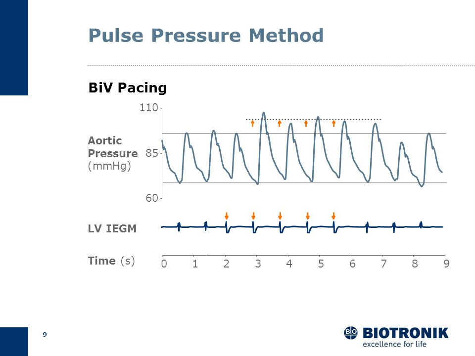 Pulse Pressure Method BiV Pacing 110 Aortic Pressure (mmHg) 85 60