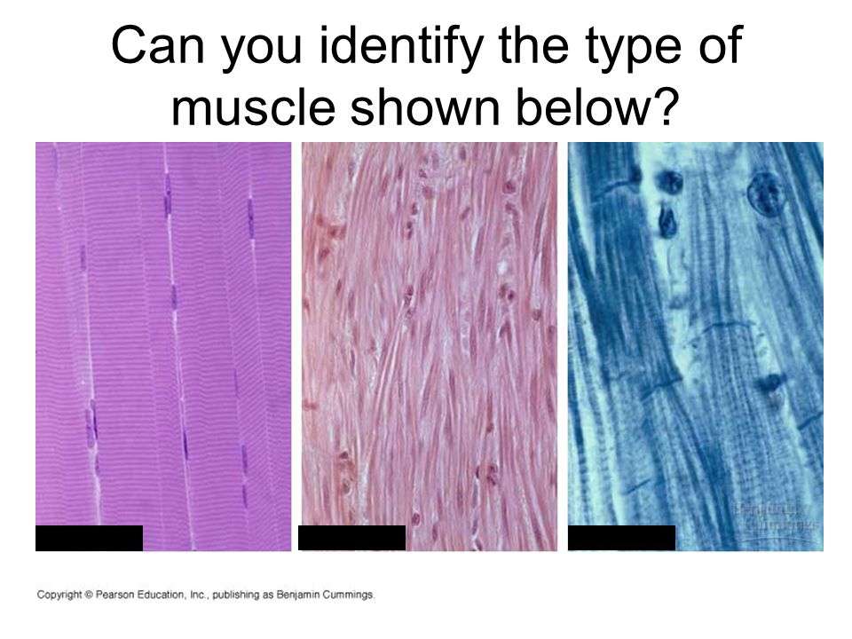 Can you identify the type of muscle shown below